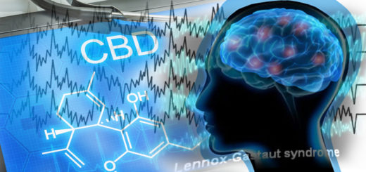 Sindrome di Lennox-Gastaut e CBD Cannabidiolo