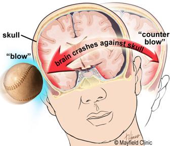 Cannabis terapeutica e lesione cerebrale traumatica